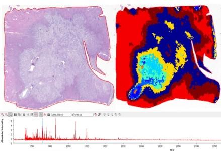 Tumeur hépatique, etude histologique et profil MALDI